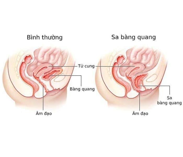 Bàng quang dễ bị sa sau quá trình sinh thường do cơ vùng chậu bị giãn ra gây ra tiểu buốt
