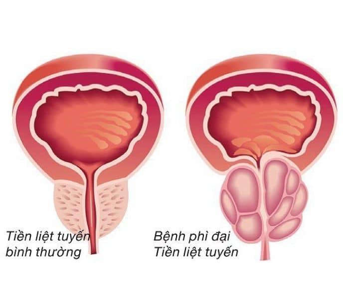 Tuyến tiền liệt phình to chèn ép bàng quang gây tiểu buốt ra máu