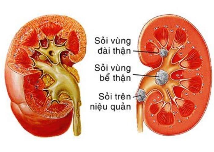 Sỏi tiết niệu - nguyên nhân gây đau lưng tiểu buốt ra máu thường gặp