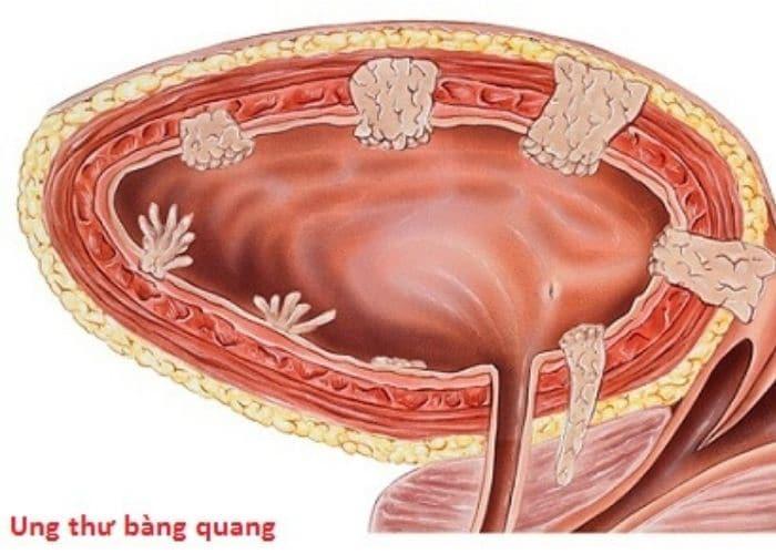 Tiểu buốt đau lưng do ung thư bàng quang