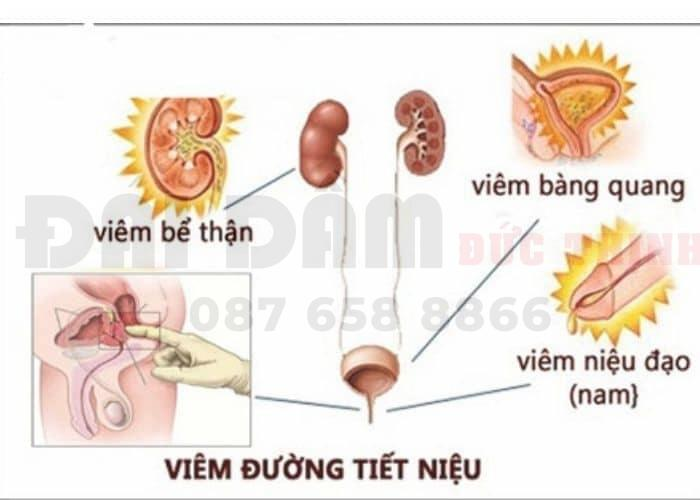 Viêm tiết niệu dẫn tới tiểu buốt ra máu, đau lưng