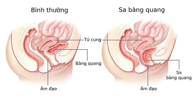 Sa bàng quang- Nguyên nhân gây tiểu buốt sau sinh mổ