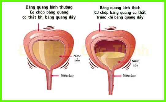 Nguyên nhân đi tiểu không tự chủ là gì