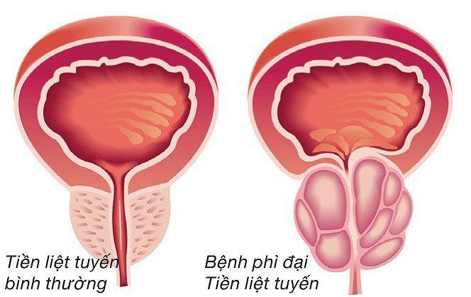 Bệnh lý tuyến tiền liệt ảnh hưởng rất nhiều đến quá trình bài tiết nước tiểu ở nam giới