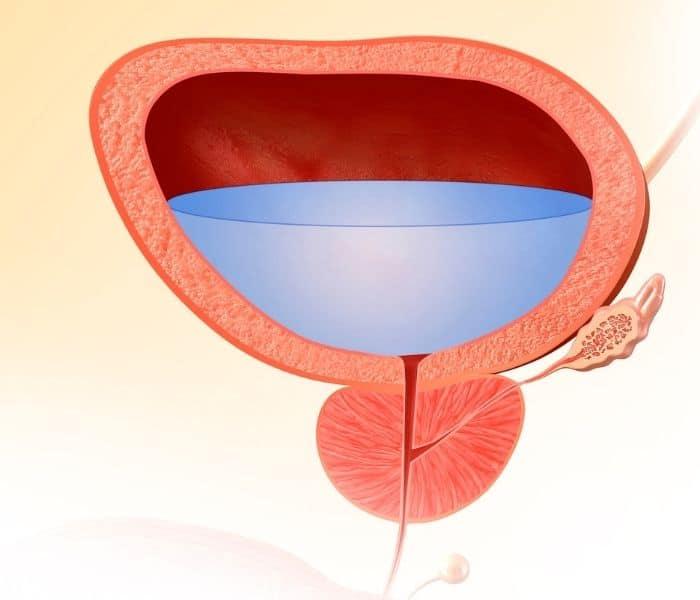 Biểu hiện đặc trưng của hội chứng bàng quang kích thích là buồn tiểu đột ngột, nước tiểu nhỏ giọt