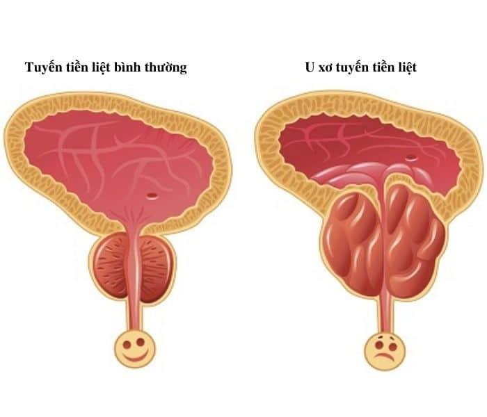 Tuyến tiền liệt ở nam giới bị u xơ, phì đại, sưng viêm gây ra chứng khó tiểu, tiểu rắt