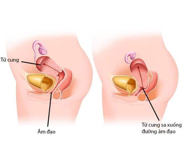 Sa tử cung sẽ chèn ép vào ống âm đạo, niệu đạo khiến cho nữ giới đi tiểu xong vẫn có cảm giác buồn tiểu