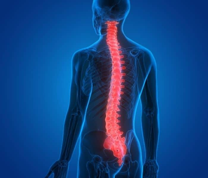 Tổn thương cột sống, xơ cứng teo cơ một bên, thoát vị đĩa đệm có thể là nguyên nhân gây ra bàng quang thần kinh