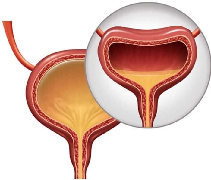 Trong bàng quang có sỏi, dị vật hoặc bệnh ung thư bàng quang đều có thể là nguyên nhân gây bí tiểu