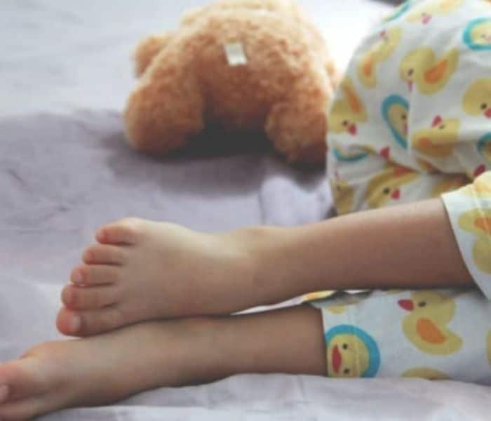 Đái dầm là chứng rối loạn tiểu tiện ở trẻ em hay gặp nhất