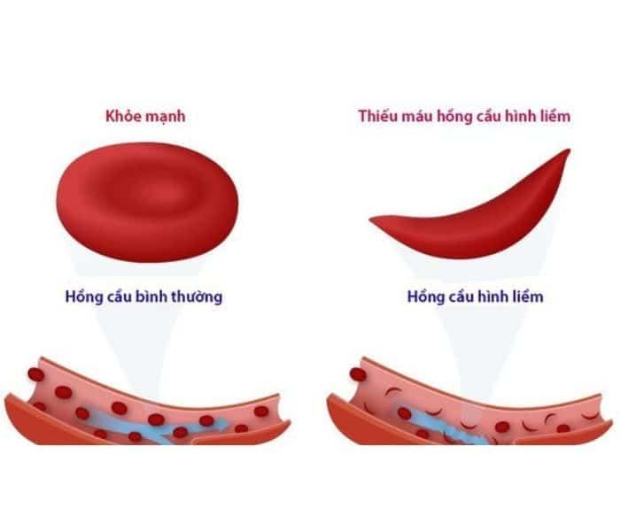 Triệu chứng phổ biến của thiếu máu hồng cầu hình liềm là thiếu máu, mệt mỏi, nhiễm trùng tiết niệu tái đi tái lại